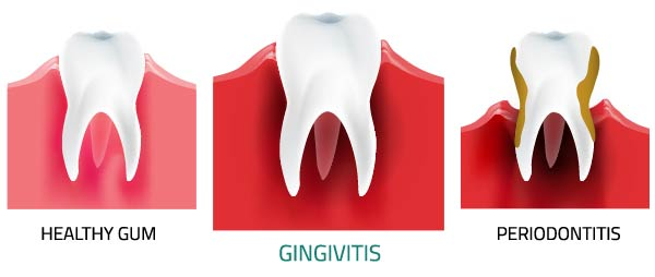 Gingivitis - treatment, symptoms, causes