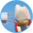 Clean and floss dental implants