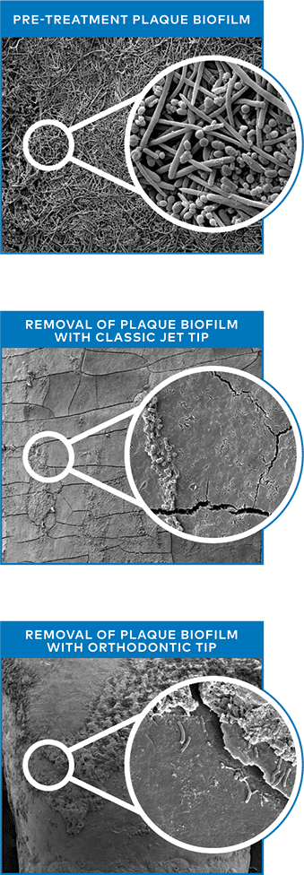 Plaque biofilm removal with Waterpik Classic Jet Tip & Orthodontic Tip
